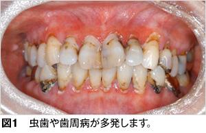 歯科医師会だより5月号(1)